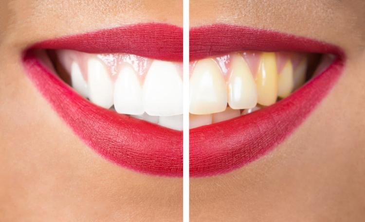 Diş Beyazlatma Hakkında İpuçları -3