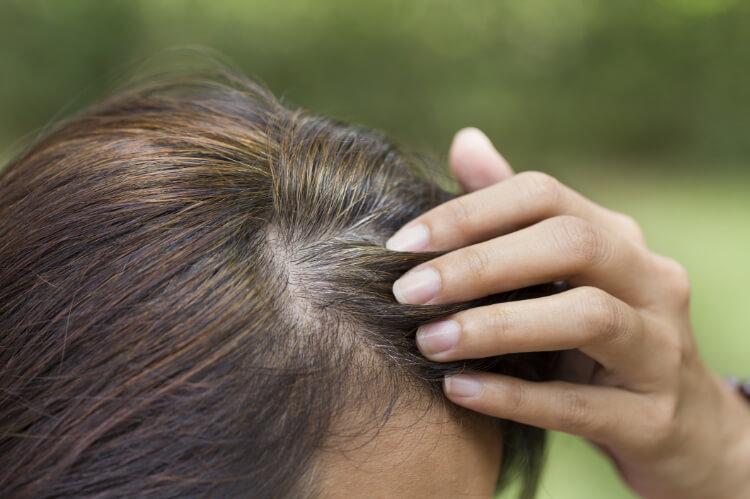 Beyaz Saçlara Çözüm: Beyaz Saç Tekrar Siyahlaşır mı?-2