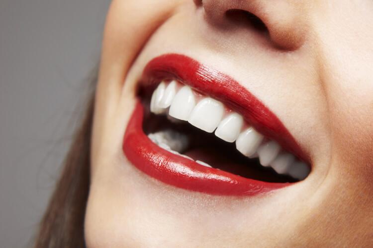Dişlerinizi Daha Beyaz Gösteren Makyaj Hileleri-2