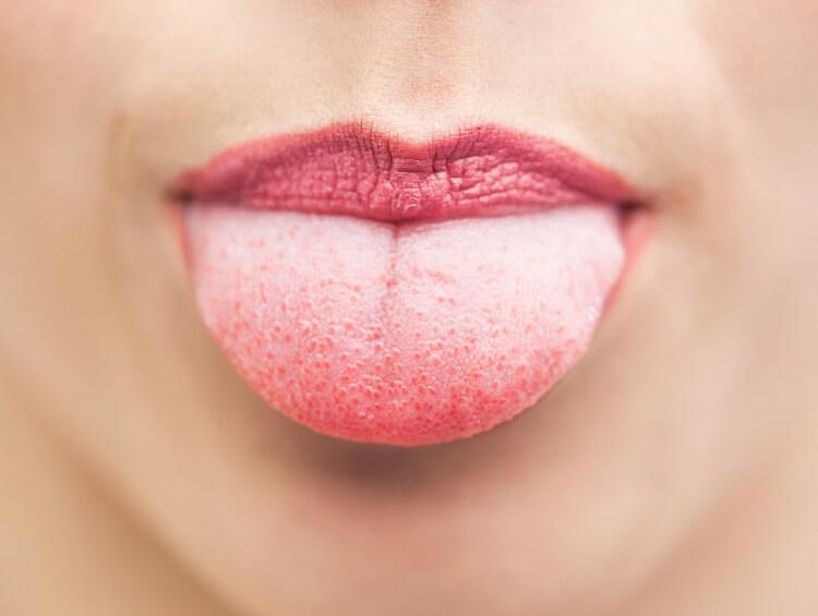 Neden Dilinizi de Fırçalamalısınız?-1