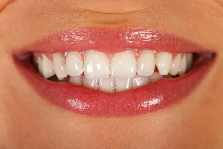 Dişleriniz Hakkında Bilmedikleriniz-3