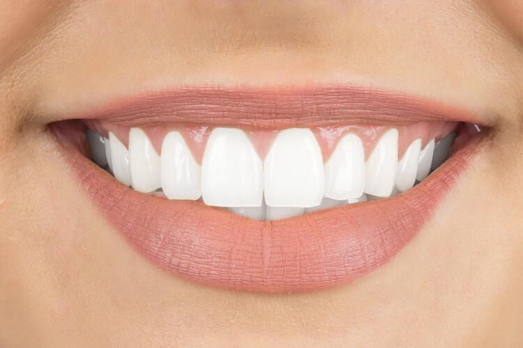 Fotojenik Bir Gülümsemenin Anahtarı-5