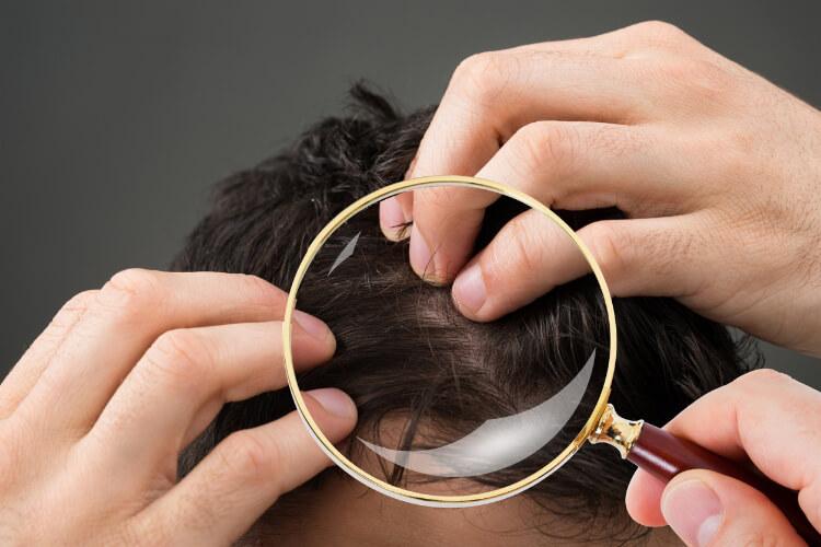 Saç Derisinde Kaşıntı Neden Olur, Nasıl Geçer?-3