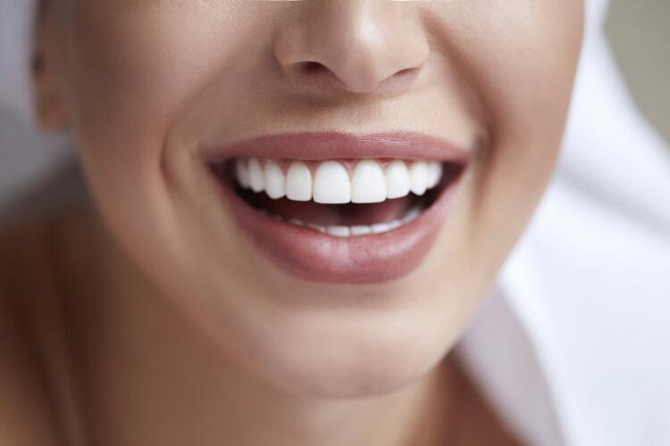 Kusursuz Bir Gülümseme İçin Dişlerinize İyi Bakın-3