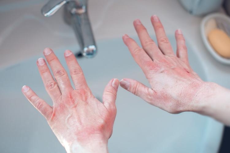 Ellerinizi Yıkarken Onları Mahvediyor Olabilir Misiniz?-1