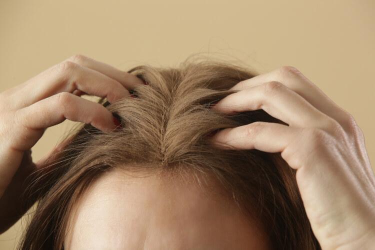 Saç Dipleri Ağrısı Hakkında Bilmeniz Gerekenler-1
