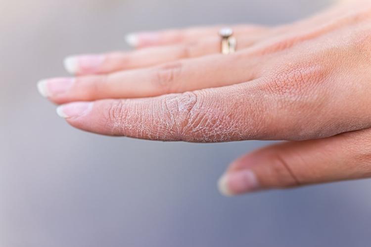 Ellerinizi Yıkarken Onları Mahvediyor Olabilir Misiniz?-3
