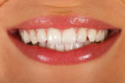 Dişleriniz Hakkında Bilmedikleriniz-4