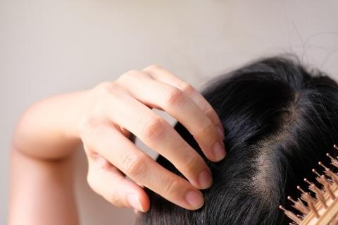 İncelen Saç Telleriyle Mücadelenin 5 Yolu-6