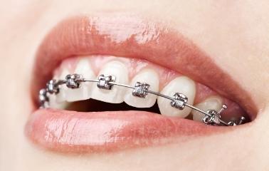 Diş Teli Olanlar İçin Ağız Bakım Önerileri