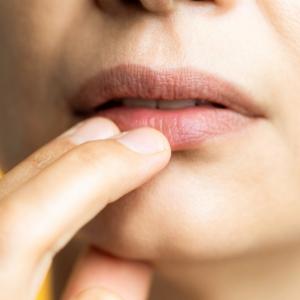 Dudak Hiperpigmentasyonu Nasıl Geçer?